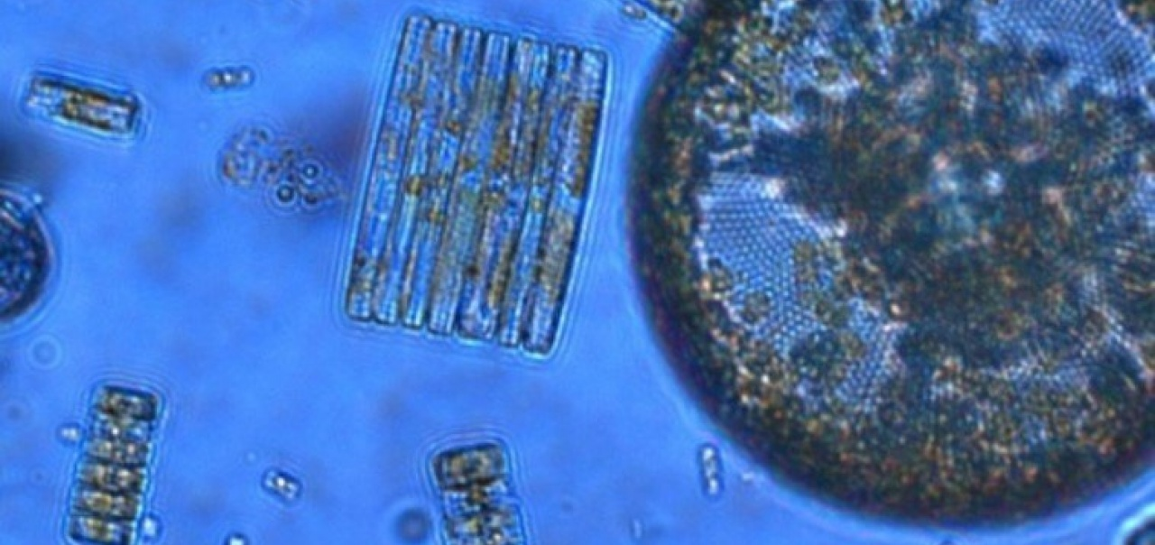 Photosynthetic plankton such as diatoms are key players in the carbon cycle and form the base of marine food webs, but new research reveals their ability to acquire iron is highly sensitive to ocean acidification.  (Diatoms from the Ross Sea, Antarctica.)